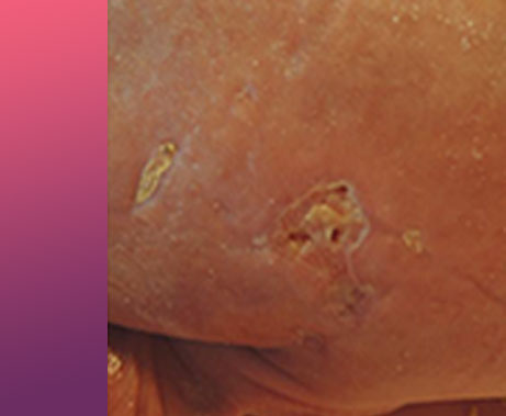 Neonatal Case Study of Treatment of Purpura Fulminans Over 28 Days with CEPROTIN